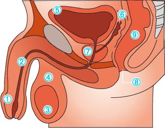 prostatitis grado 3