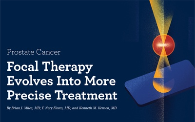 Focal Therapy Evolves Into More Precise Treatment in Prostate Cancer